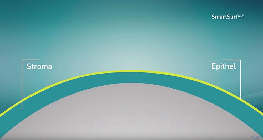 Grafisches Bild Excimer Laser Behandlung des Auges