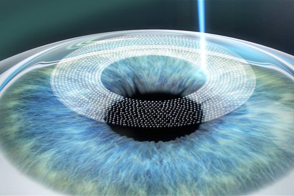 Femto-LASIK Behandlung mittels Femtosekunden-Laser